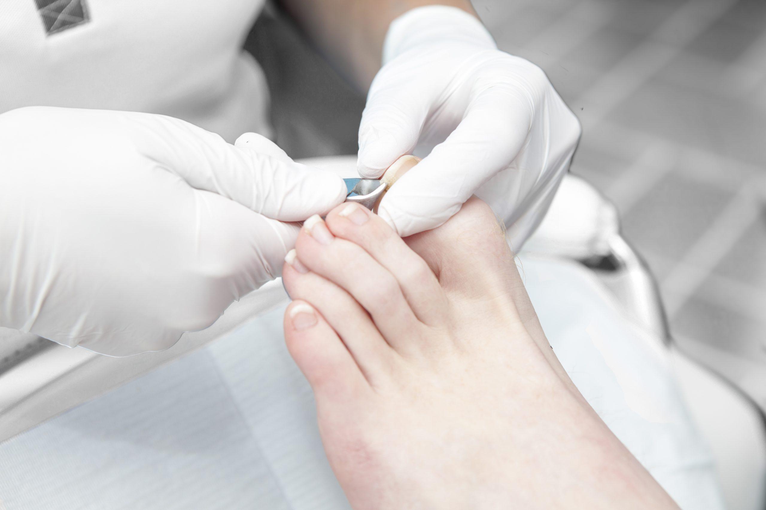 simple nail cut